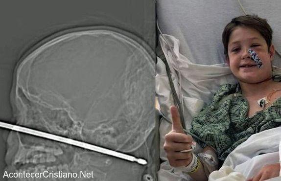 Niño sobrevive atravesado con varilla de metal