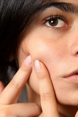 The cause of acne it may be your diet,  Learn what to Eat, What Not to Eat