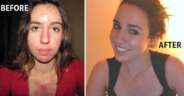 traitement acné tres fort 800