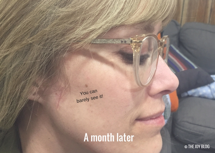Basal Cell Carcinoma & Mohs Surgery // www.thejoyblog.net