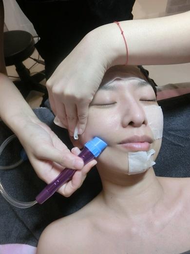 高雄顏之鑽做臉清粉刺美容護膚SPA推薦使用奎蒂絲杏仁酸煥膚保養品
