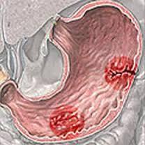 Lá khôi tía - thuốc Nam quý trị bệnh dạ dày
