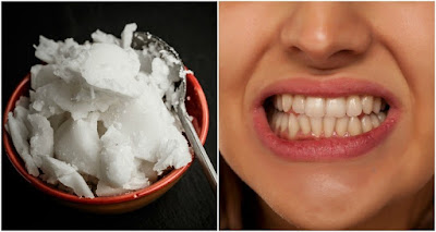 How To Whiten Teeth With Coconut Oil (+12 More Reasons To Put It In Your Mouth)