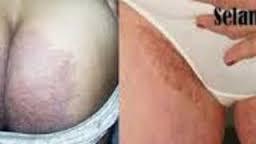 obat gatal jamur selangkangan dan kelamin secara alami