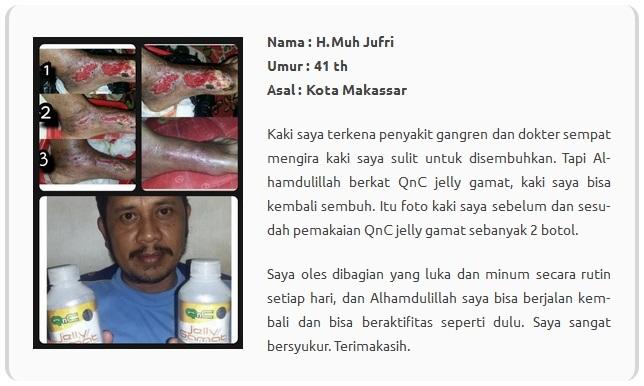 Hasil gambar untuk testimoni pengguna qnc jelly gamat untuk syaraf