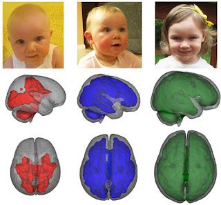 Perkembangan Otak Anak