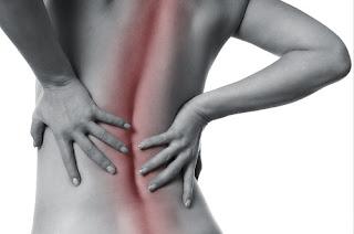 dolor ciatica