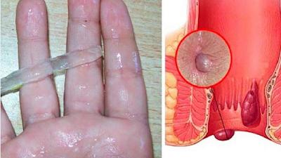 وصفة طبيعية لعلاج البواسير وإيقاف النزيف والحكة.. لا تفوتيها وارسليها لكل من يعاني من مرض البواسير الخطير جدا