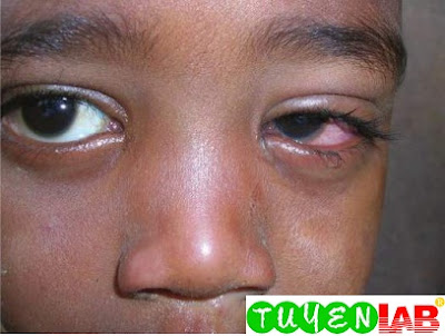 Unilateral conjunctivitis in a 4-year-old child