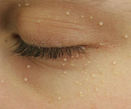Cara Menghilangkan Bintik Di Bawah Mata