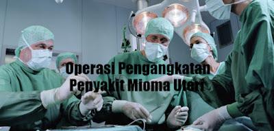 Biaya Operasi Pengangkatan Penyakit Mioma Uteri