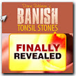 Source of Information on Banishing Tonsil Stones