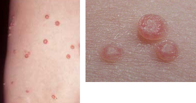 Osip i promjene na koži kod djece - Foto-vodič: Moluske