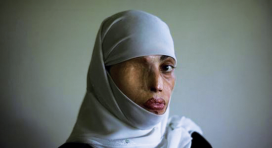 Aesha Mohammadzai Photos: Afghan Woman Who Had Nose, Ears
