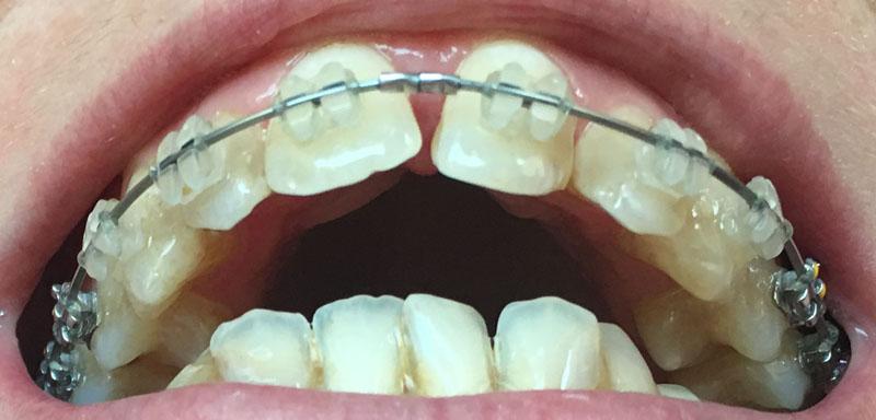 Orthodontie adulte bouche en chantier j 15 semaines un for Bagues dentaires interieur