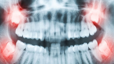 Wisdom Teeth X-RAY Cost