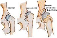coxofemural-dysplasia-dysplastic-dogs-em-caes