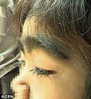 Hipertrihoza - osmogodišnjakinja prekrivena gustom crnom dlakom.