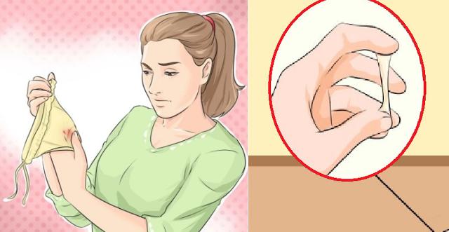 Belajar dari Kesalahan Pasien Kanker Serviks, Waspadai Gejala pada Organ Kewanitaan Saat Haid Terutama pada Wanita Usia 30 - 45 Tahun !!