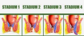 Stadium Penyakit Ambeien