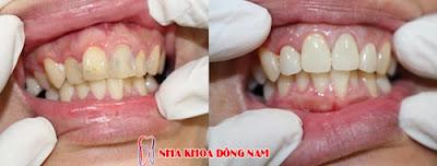 bọc răng sứ có tháo ra được không -7