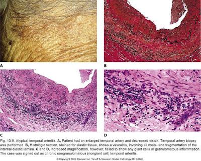 Atypical temporal arteritis