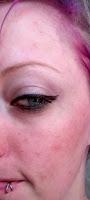 rosacea pink cheeks irritation sunburn skin peel face tca lactic mandelic muac ebay