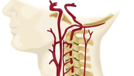 図:頸動脈と美容院脳卒中症候群