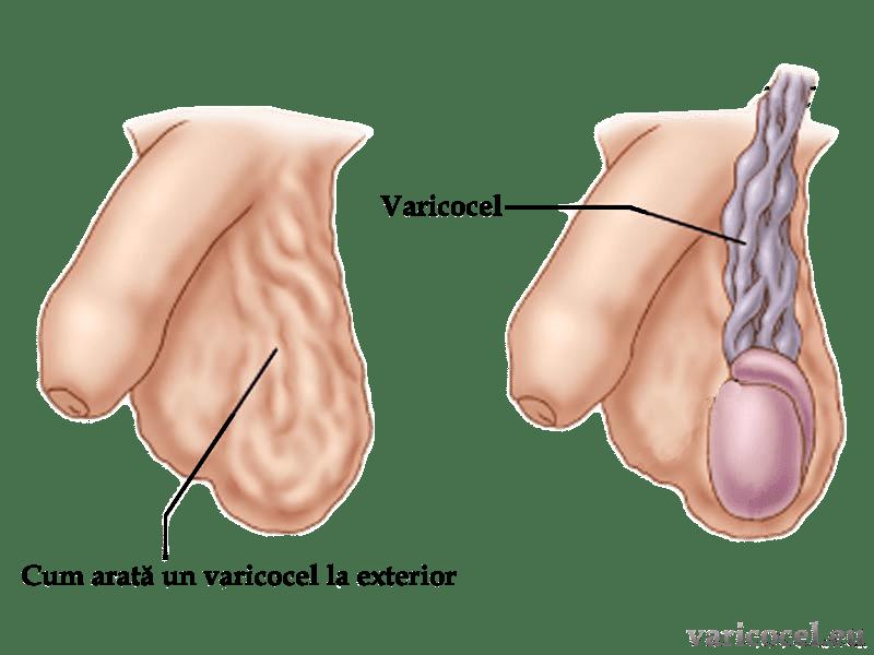 durerea varicoasă în simptomele skews