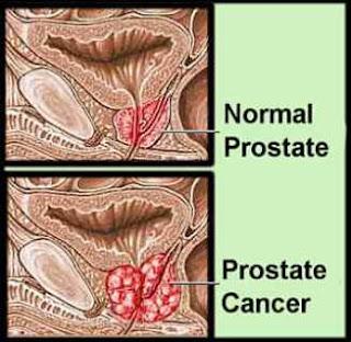 gejalan kanker prostat