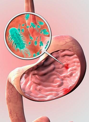 Image result for хеликобактер симптоми
