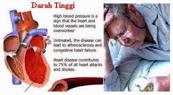 Cara Mengatasi Hipertensi secara Alami