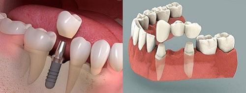 có nên cắm ghép răng implant không -5