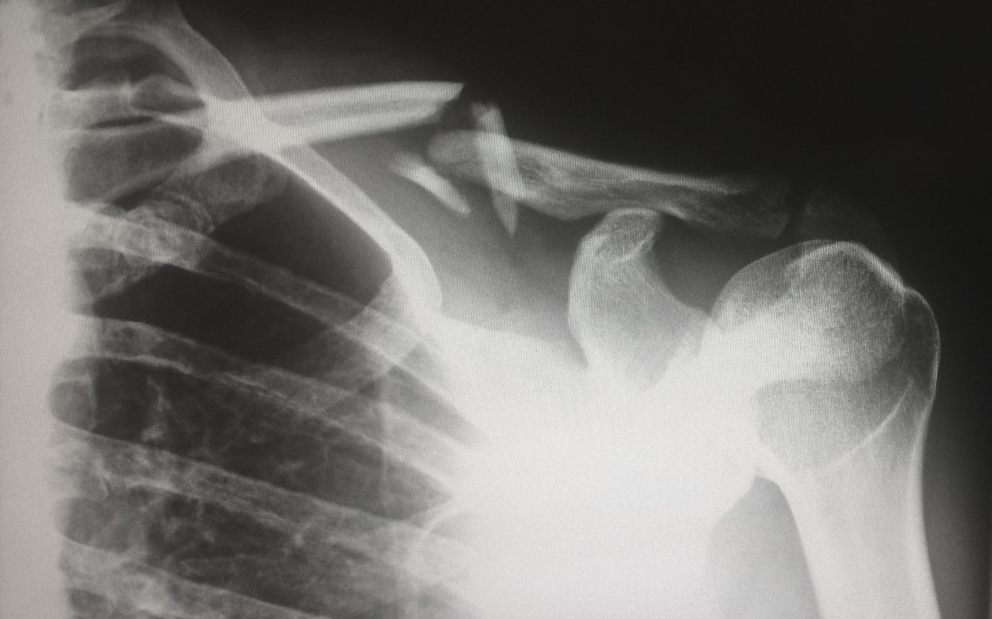 x-ray scan of chest