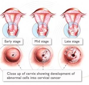 Image Cara Pengobatan Herbal Penyakit Kanker Tanpa Operasi dan Kemoterapi