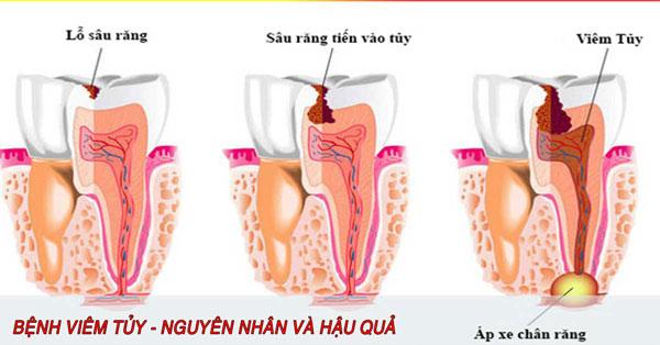 Răng bị lung lay do viêm nhiễm, sâu răng
