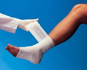 O curativo da úlcera varicosa é essencial para sua cicatrização