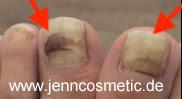 Fussnagel-gelb-fussnagel-krankheiten-jenncosmetic