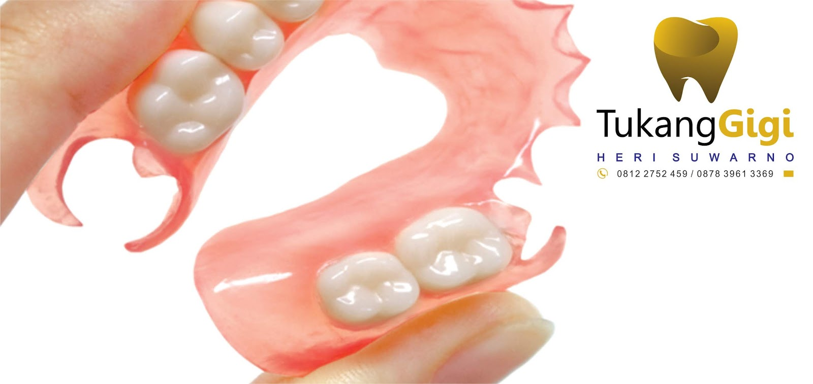 Pada beberapa kondisi gigi yang patah dapat direstorasi diperbaiki dengan  menggunakan bagian patahannya namun tentu saja hal in bergantung dari  beberapa ... 7714cb100c