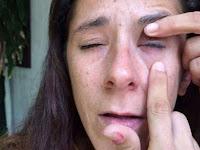 Ngeri! Minta Tolong Teteskan Obat Mata, Teman Malah Teteskan Lem, Akibatnya Fatal