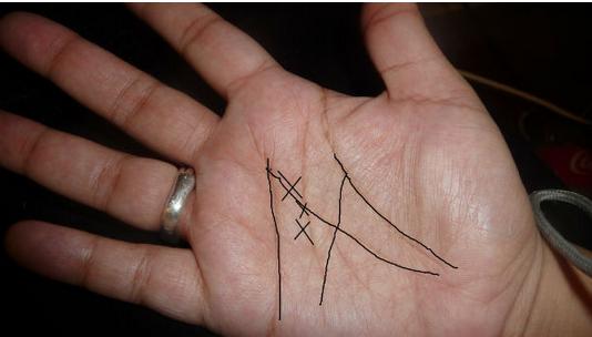 """Apakah Anda MEMILIKI Tanda Huruf """"M"""" di Telapak Tangan? Jika ia ..."""