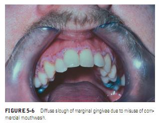 Burket S Oral Medicine Chemical Injuries Of The Oral Mucosa