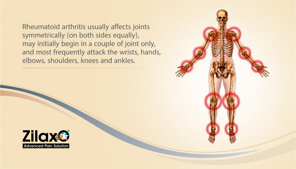 Zilaxo Advanced Pain Solution Find Out If You Have Rheumatoid Arthritis