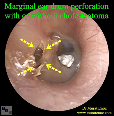 Marginal eardrum perforation with retraction pocket