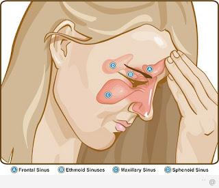 Triệu chứng viêm xoang sàng sau