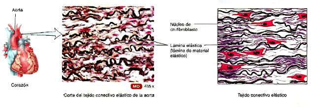 Tejido conectivo elástico de la aorta