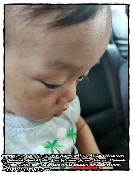Gambar muka bayi lelaki ada ruam dan kesan bengkak setelah antibiotik membunuh bakteria.