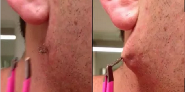 WATCH: Man Pulls Out The World's Longest Ingrown Hair From Blackhead And Then…OMG!