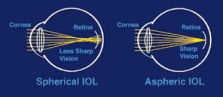 Visison Change In Spherical Iol vs Aspheric Iol