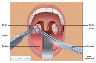 4 phương pháp cắt amidan hiệu quả an toàn
